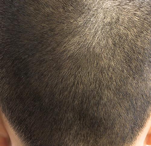 Test del capello